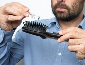 PHS HAIRSCIENCE®️ 10 causes of hair loss for men