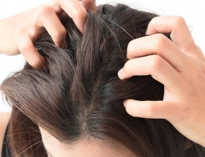 PHS HAIRSCIENCE®️ Causes and cure of dry scalp